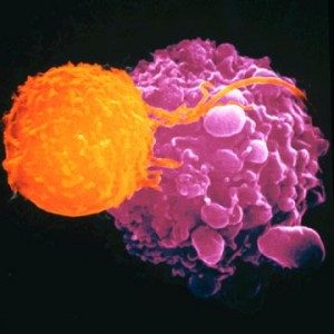 Célula cancerígena durante su apoptosis, al microscopio electrónico.
