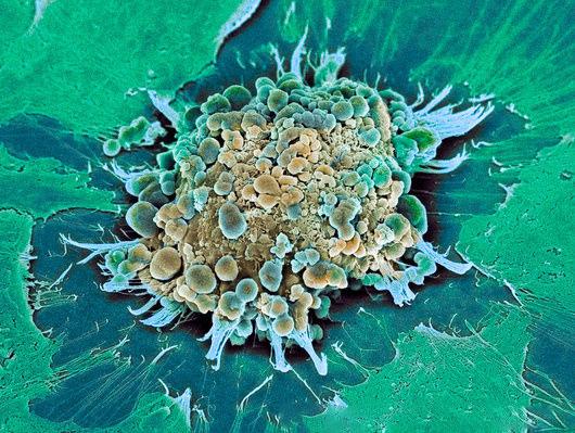 La célula suicida.